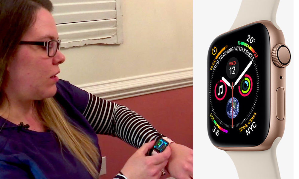 Apple Watch S4 Leads Woman to Supraventricular Tachycardia Diagnosis