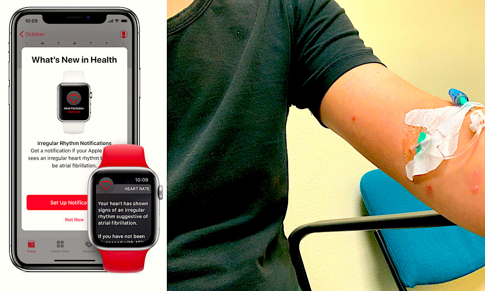 23-Year-Old Rushed to Hospital After Apple Watch Heart Monitor 'Went Nuts'